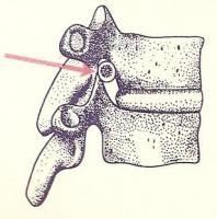 脊椎の歪み・後